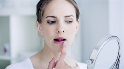 Chapped lips do's and don'ts: Follow these doctor-approved
