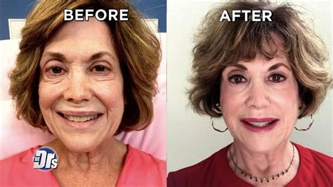 Can Non-Surgical Facelift Erase 20 Years in 20 Minutes